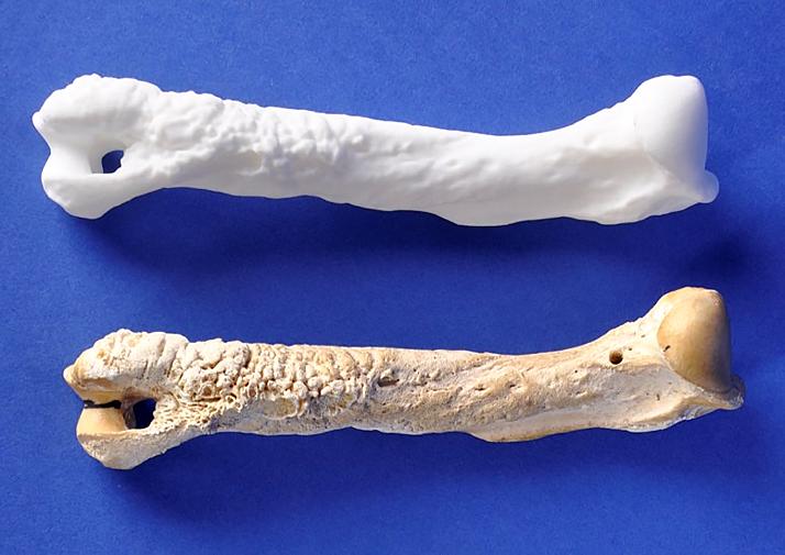 Bones Enhanced